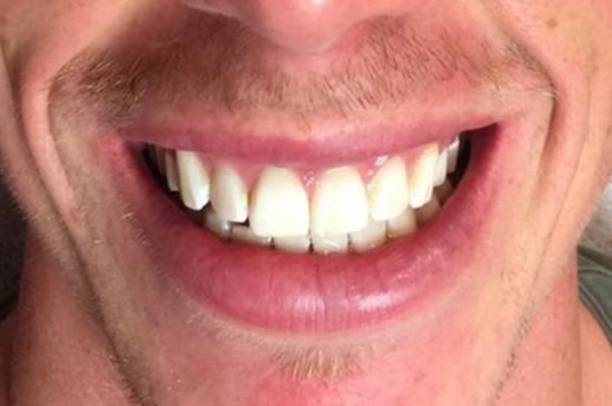 Tanden bleken na_1