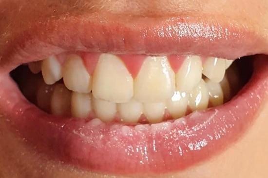 Tanden bleken voor
