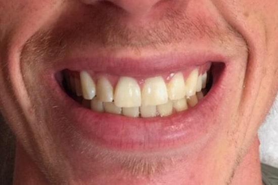 Tanden bleken voor_1